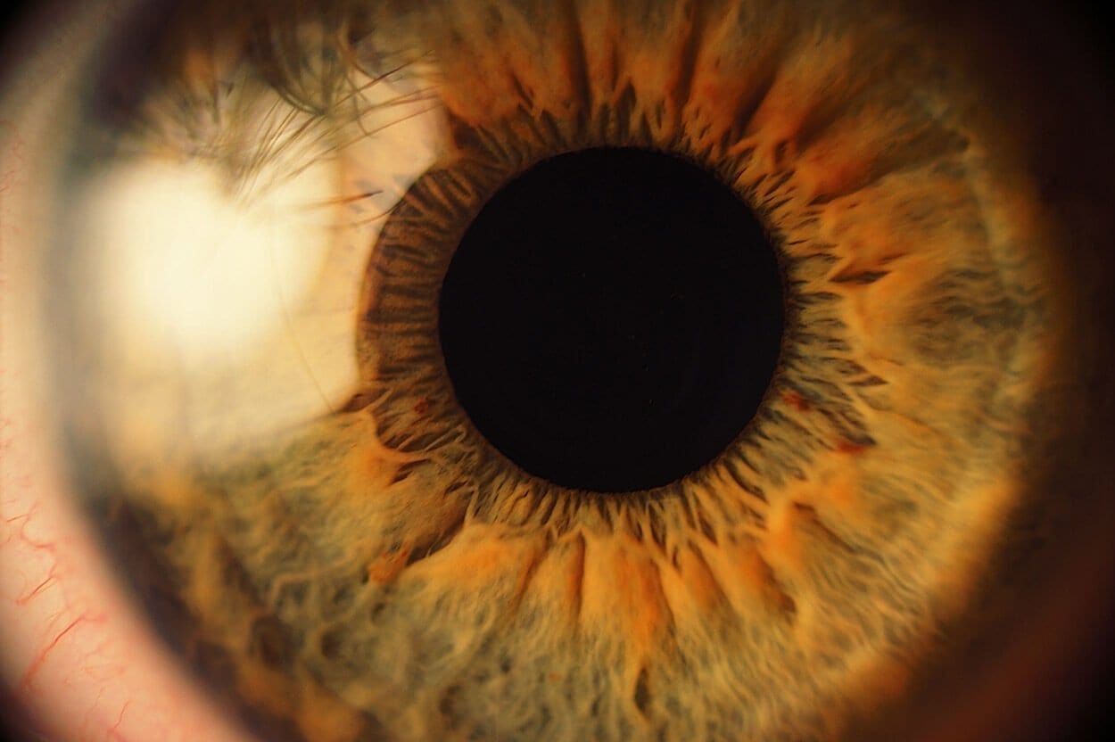 SNHS-iridology-2
