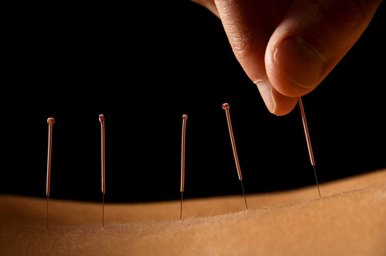 All about acupressure and acupuncture