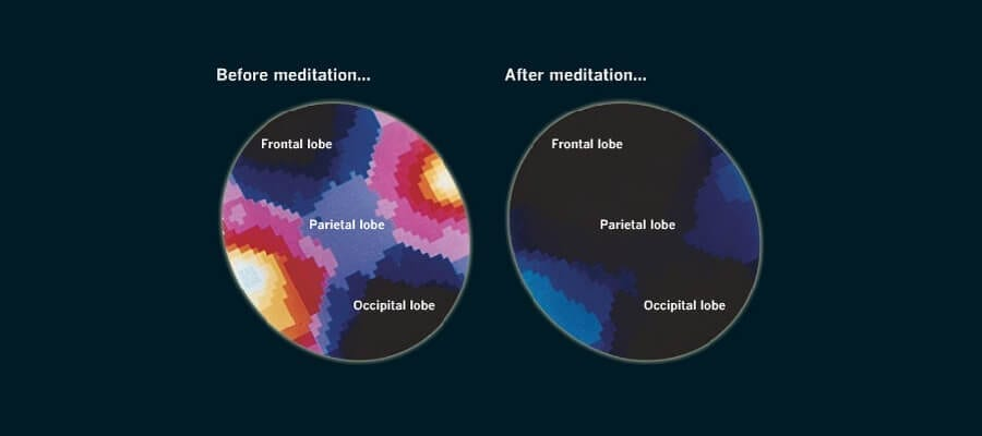 Before & After: Meditation