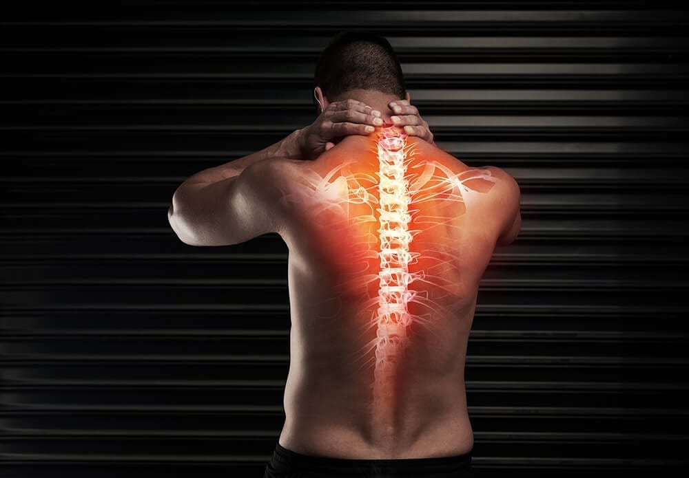 xray image of a mans back