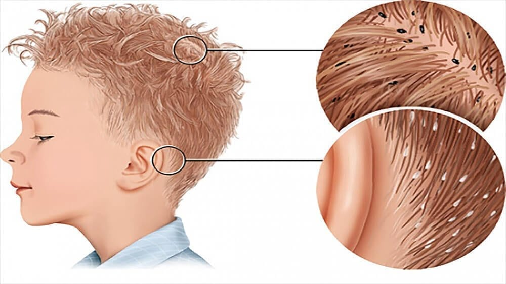 Natural herbal remedies for head lice